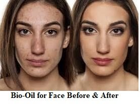 bio oil for face before and after picture