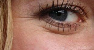 Bio oil benefits for face wrinkles