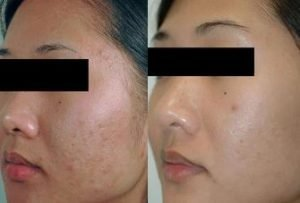 tea tree oil for acne scars before and after